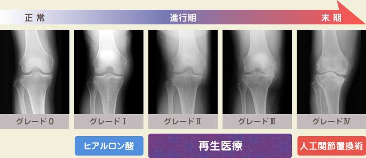 正常 進行期 末期 | グレード0〜5 | グレード1: ヒアルロン酸 / グレード2-3: 再生医療 / グレード4: 人工関節置換術