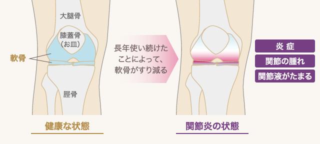 健康な状態 | 長年使い続けたことによって、軟骨がすり減る | 関節炎の状態: 炎症 / 関節の腫れ / 関節液がたまる