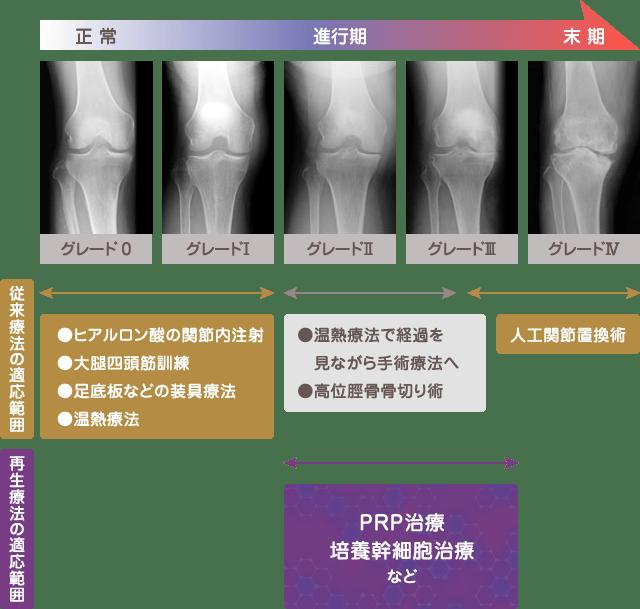 再生医療に期待されるのは、変形性膝関節症の進行抑止