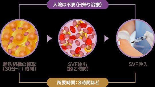 培養幹細胞治療の流れ   所要時間:3時間ほど   入院は不要(日帰り治療)   脂肪組織の採取(30分〜1時間) → SVF抽出(約2時間) → SVF注入